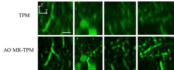 深圳先进院等在双光子显微成像技术研发中取得进展